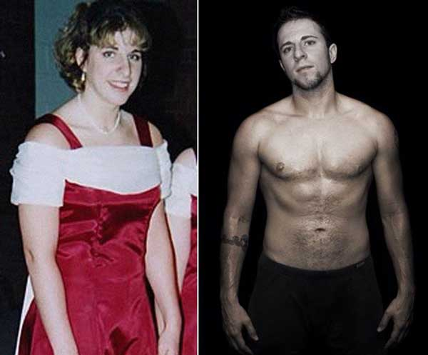 Transgender Female To Male Top Surgery